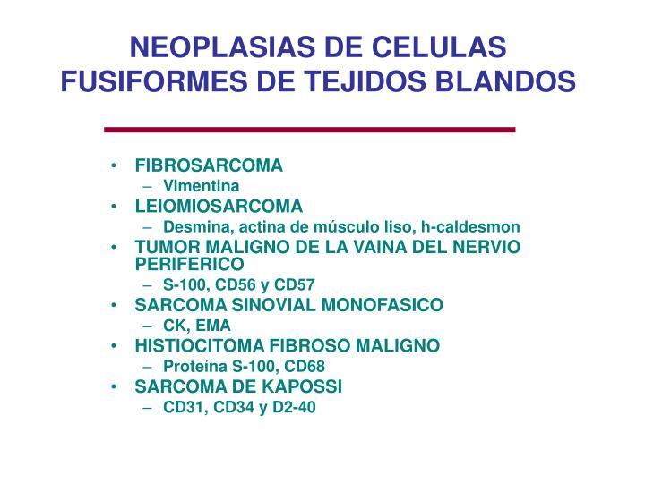 NEOPLASIAS DE CELULAS FUSIFORMES DE TEJIDOS BLANDOS