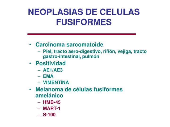 NEOPLASIAS DE CELULAS FUSIFORMES
