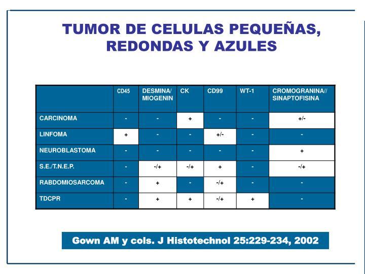 TUMOR DE CELULAS PEQUEÑAS, REDONDAS Y AZULES