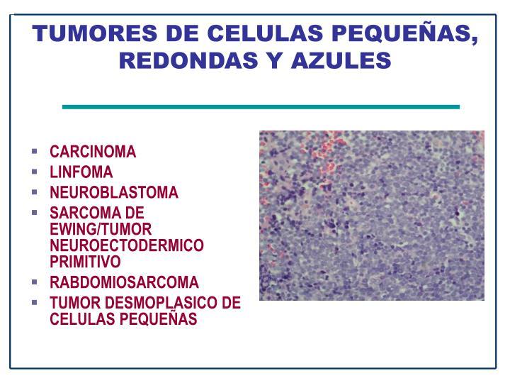 TUMORES DE CELULAS PEQUEÑAS, REDONDAS Y AZULES