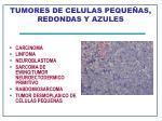 tumores de celulas peque as redondas y azules