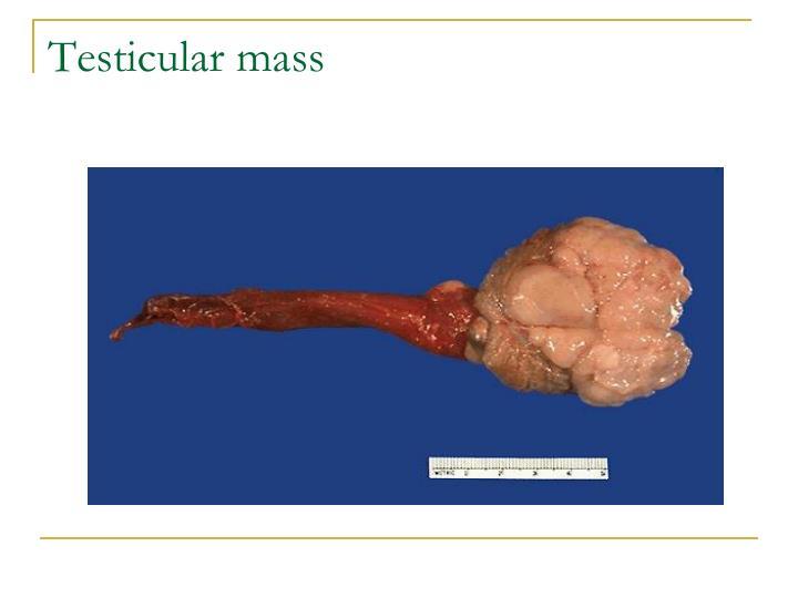 Testicular mass