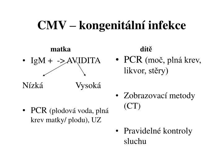 IgM +