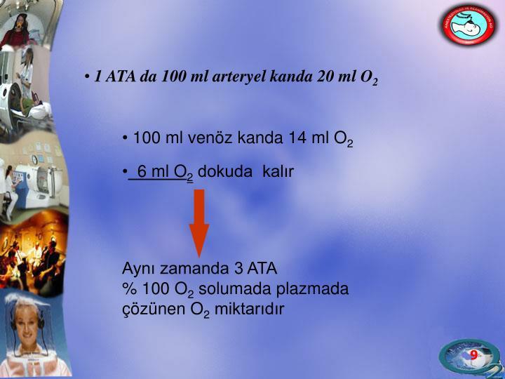 1 ATA da 100 ml arteryel kanda 20 ml O