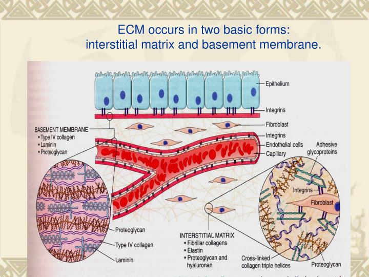 ECM occurs in two basic forms: