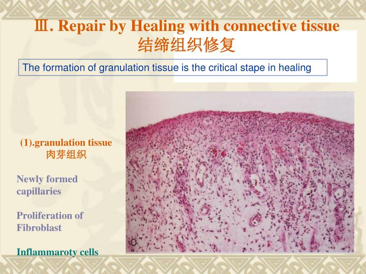 Ⅲ. Repair by Healing with connective tissue