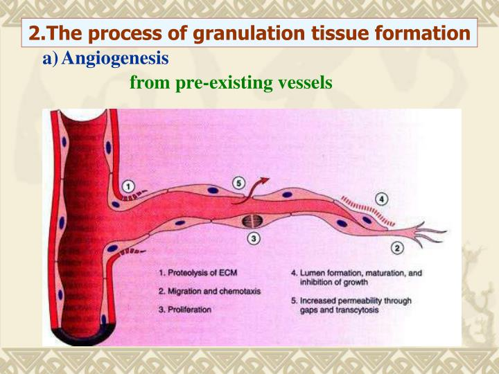 2.The process of granulation tissue formation