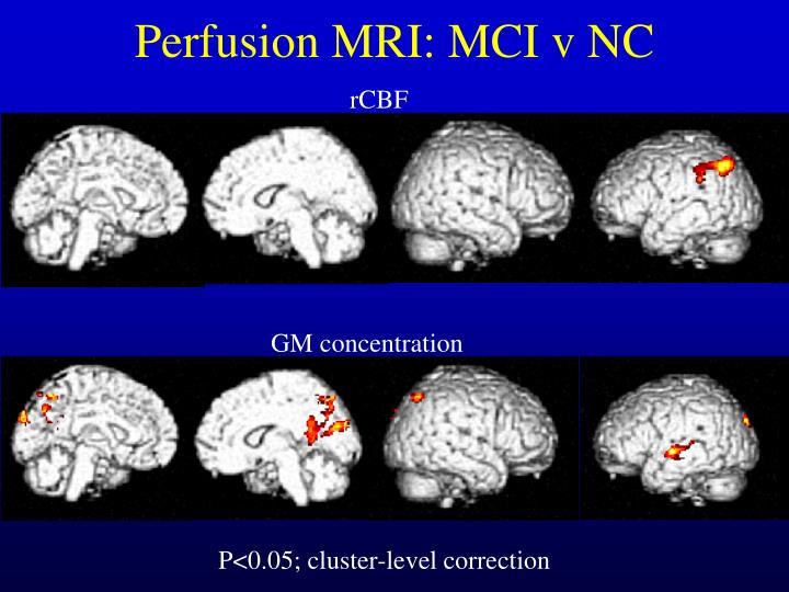 Perfusion MRI: MCI v NC