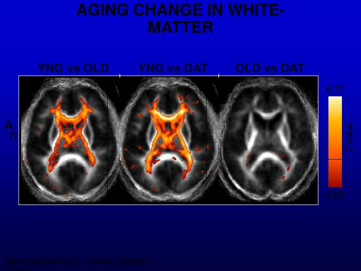 AGING CHANGE IN WHITE-MATTER