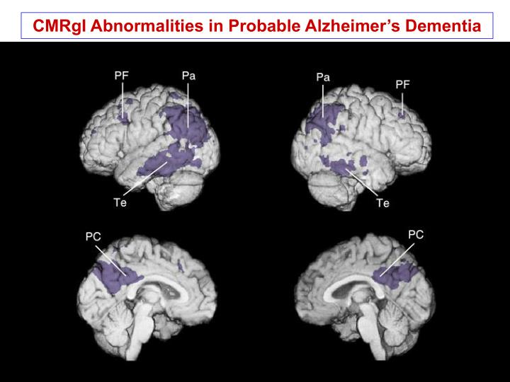 CMRgI Abnormalities in Probable Alzheimer's Dementia