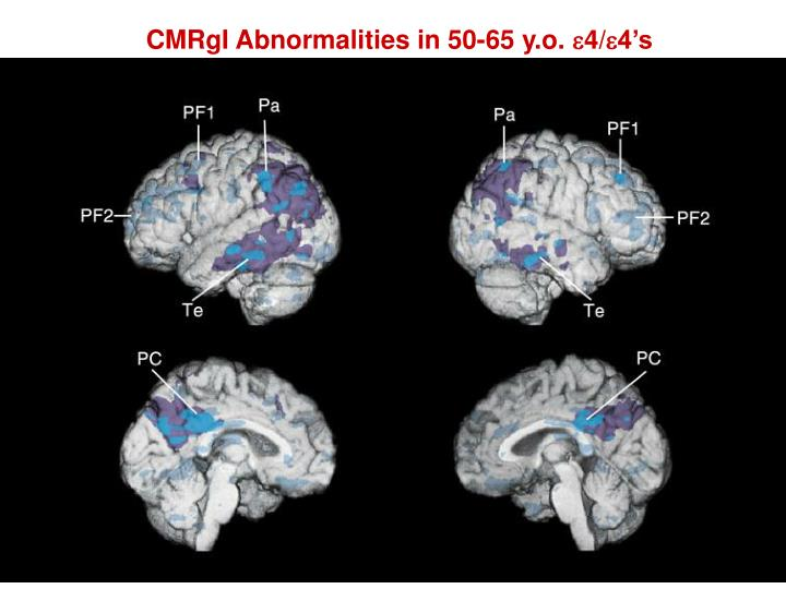 CMRgI Abnormalities in 50-65 y.o.