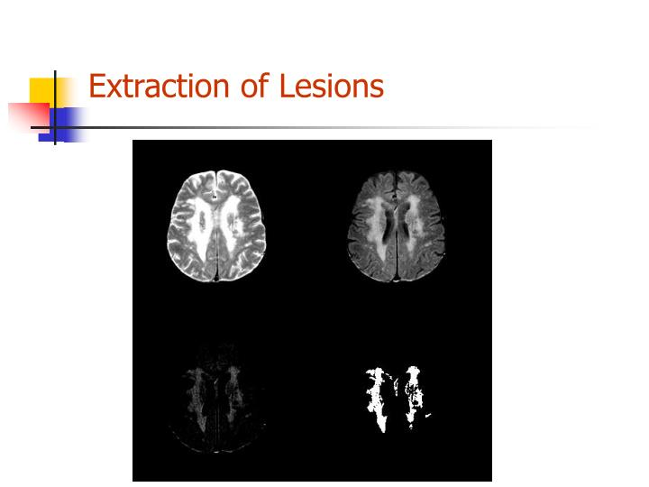 Extraction of Lesions