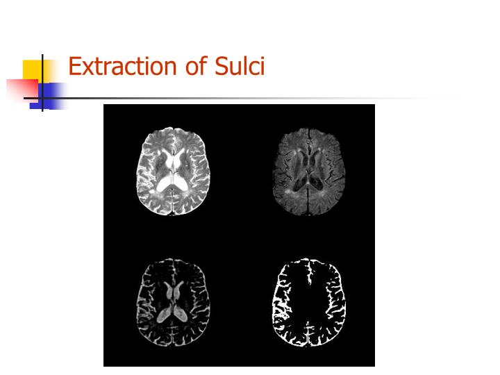 Extraction of Sulci