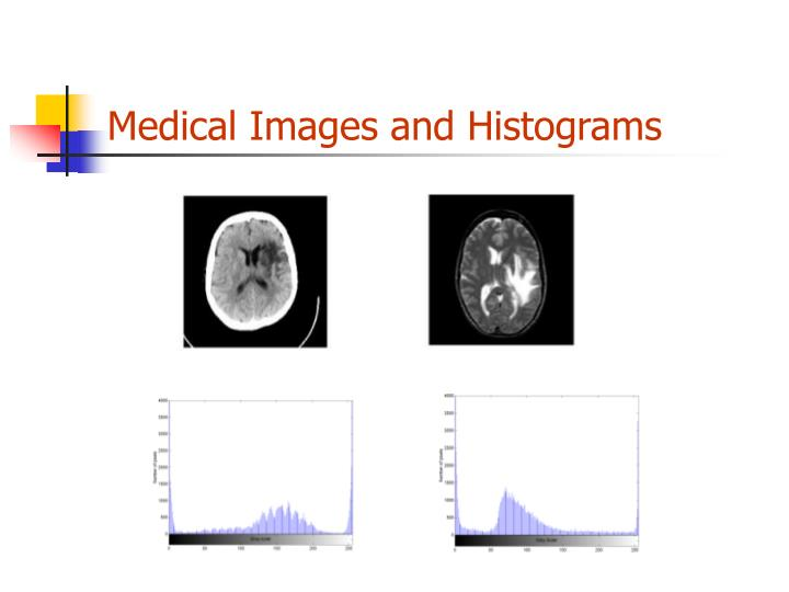 Medical images and histograms
