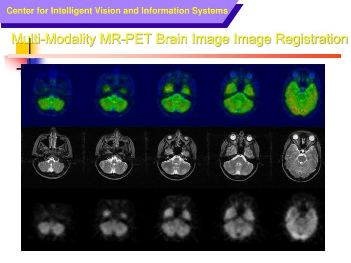 Multi-Modality MR-PET Brain Image Image Registration