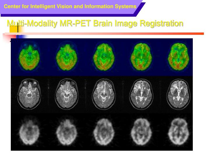 Multi-Modality MR-PET Brain Image Registration