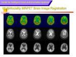 multi modality mr pet brain image registration1