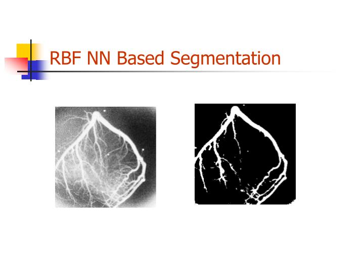 RBF NN Based Segmentation