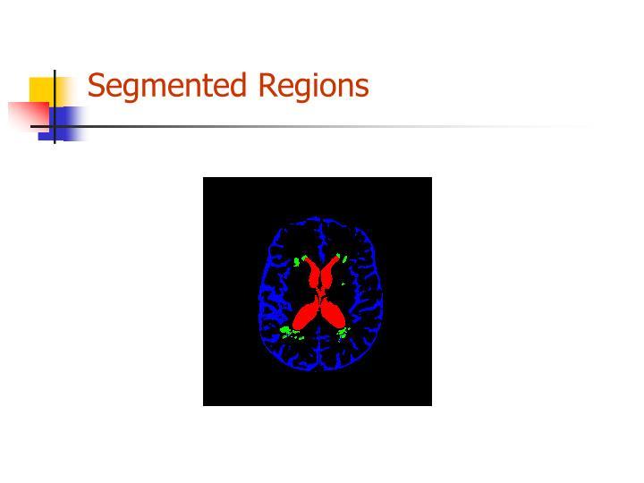 Segmented Regions