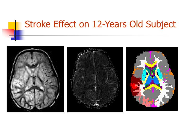 Stroke Effect on 12-Years Old Subject
