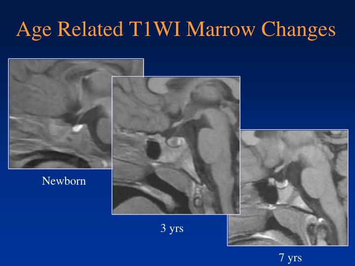 Age Related T1WI Marrow Changes