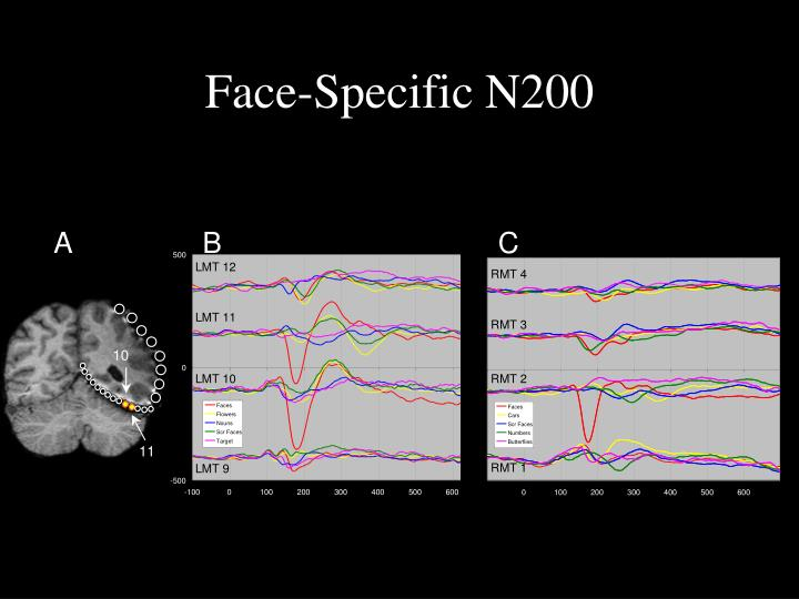 Face-Specific N200