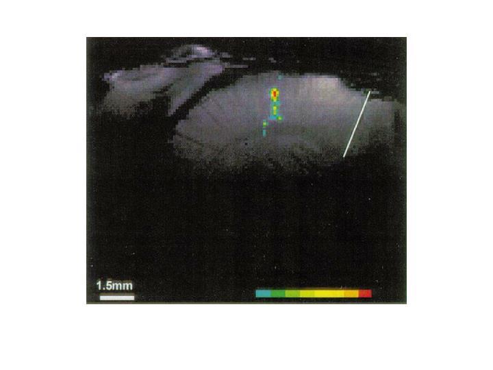 Rat Single Whisker Barrel fMRI Activation