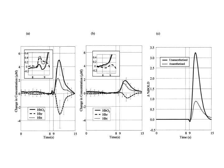 Berwick et al, JCBFM, 2002