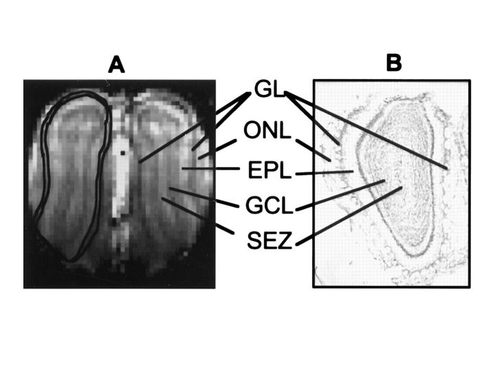 Rat Olfactory Bulb Structural MRI