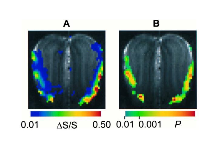 Rat Olfactory Bulb fMRI Activation