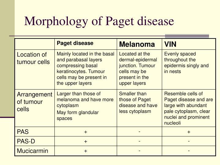 Morphology of Paget disease