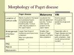 morphology of paget disease