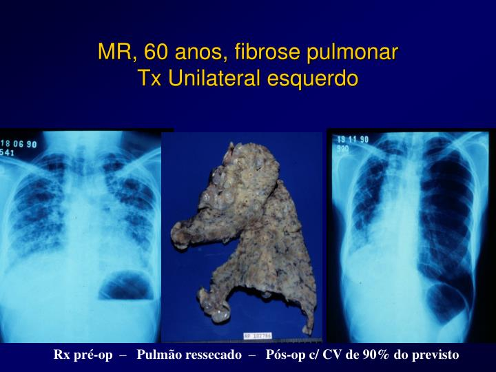 MR, 60 anos, fibrose pulmonar