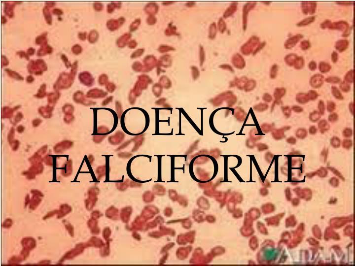DOENÇA FALCIFORME