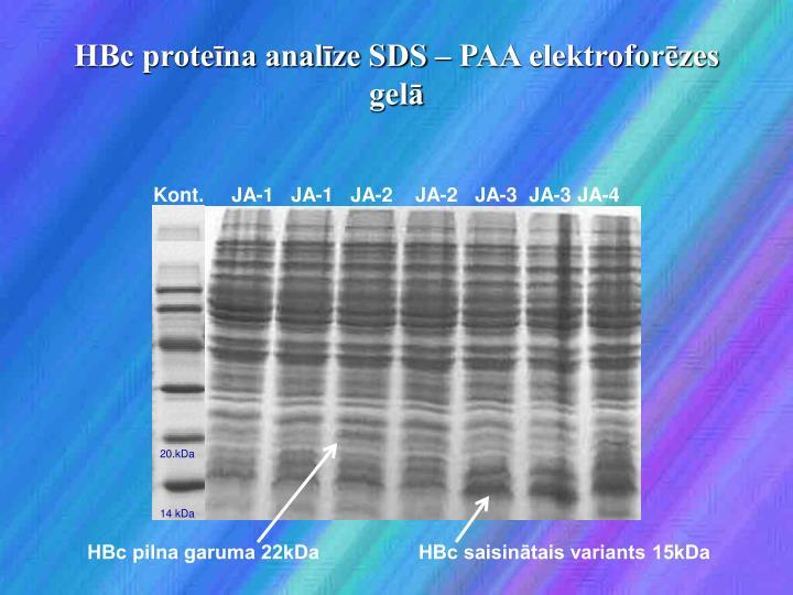 HBc proteīna analīze SDS – PAA elektroforēzes gelā