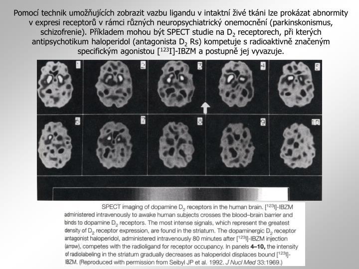 Pomocí technik umožňujících zobrazit vazbu ligandu v intaktní živé tkáni lze prokázat abnormity v expresi receptorů v rámci různých neuropsychiatrický onemocnění (parkinskonismus, schizofrenie). Příkladem mohou být SPECT studie na D