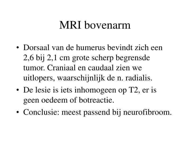 MRI bovenarm