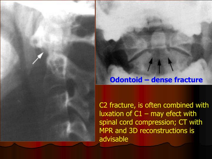 Odontoid – dense fracture