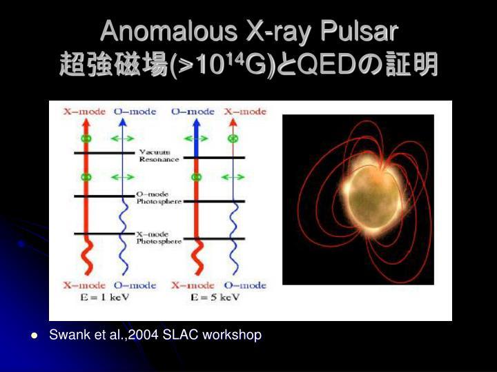 Anomalous X-ray Pulsar