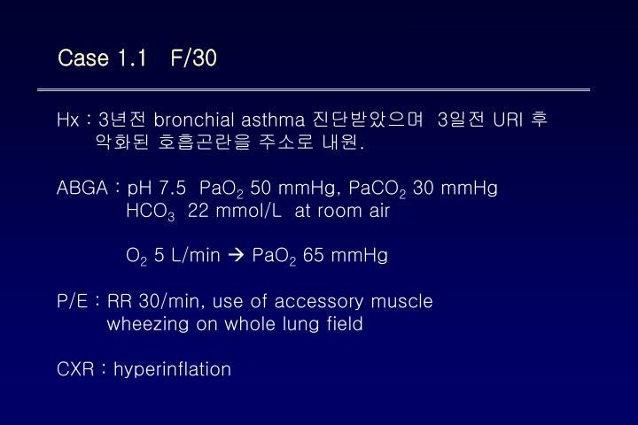 Case 1.1   F/30