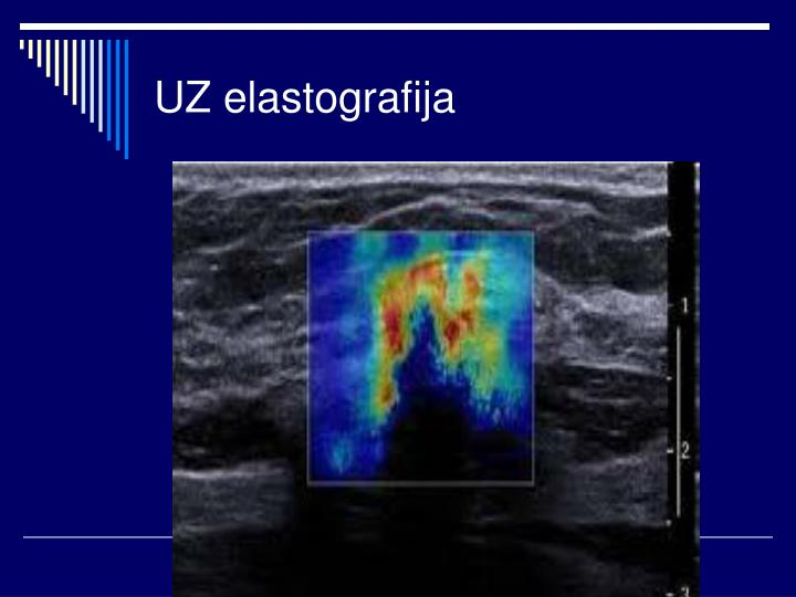 UZ elastografija