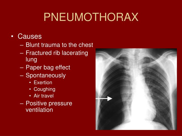 trauma presentation Provision and presentation of report to executive and  trauma is time critical with the vast majority of those dying in the prehospital environment,.