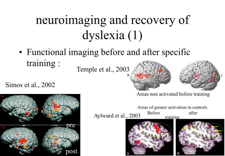 neuroimaging and recovery of dyslexia (1)