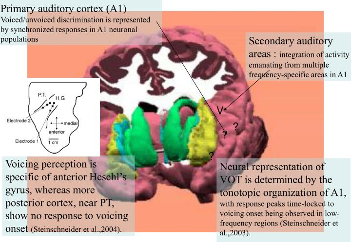 Primary auditory cortex (A1)