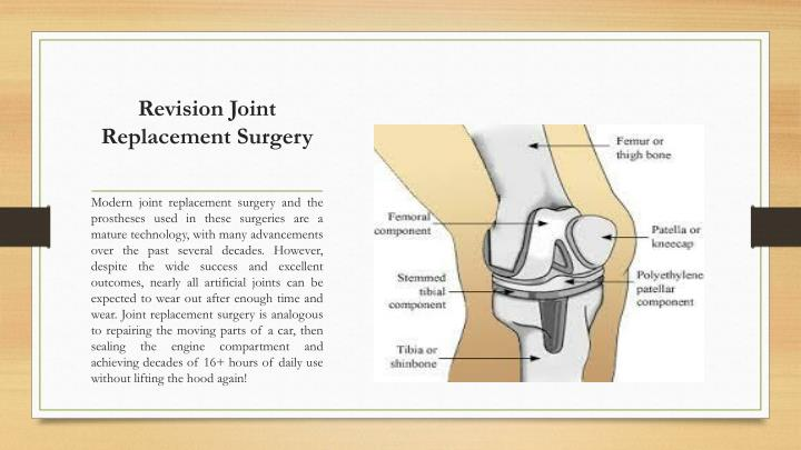 Revision Joint Replacement Surgery