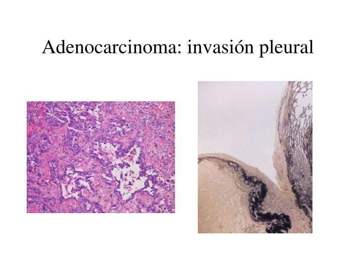 Adenocarcinoma: invasión pleural