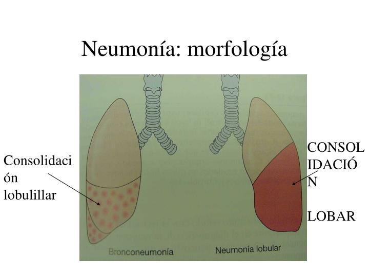 Neumonía: morfología