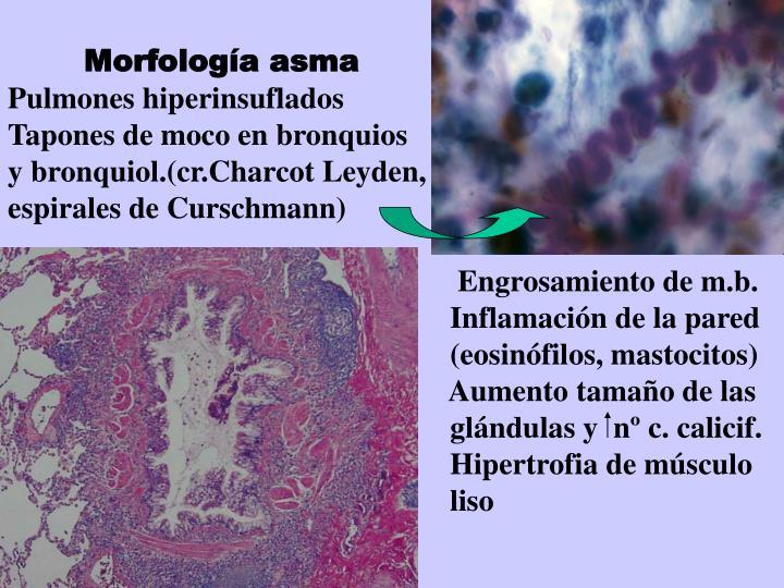 Morfología asma