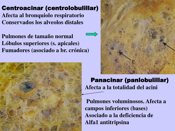 Centroacinar (centrolobulillar)