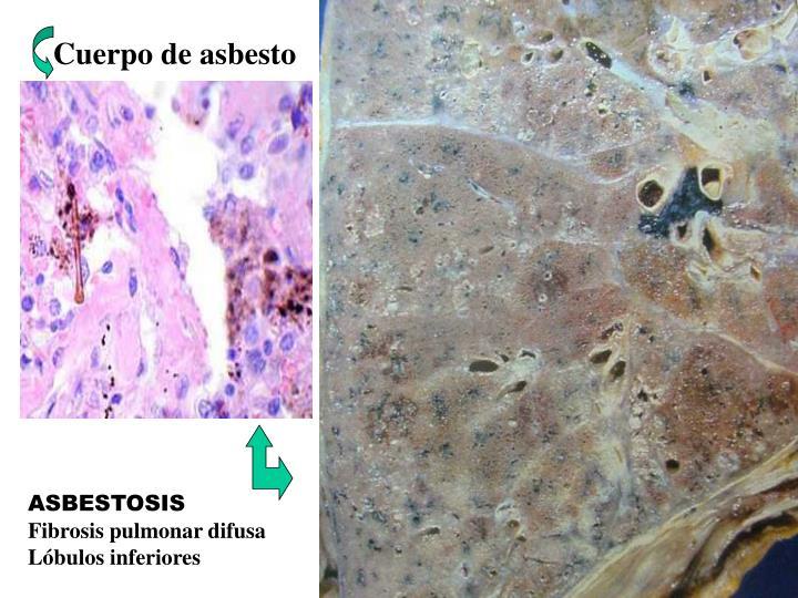 Cuerpo de asbesto